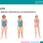 ¿Tipos de Celulitis?